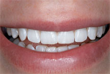 Brighter smile after teeth whitening