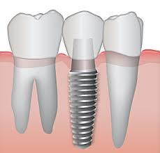 Dental implants look and function like your regular teeth