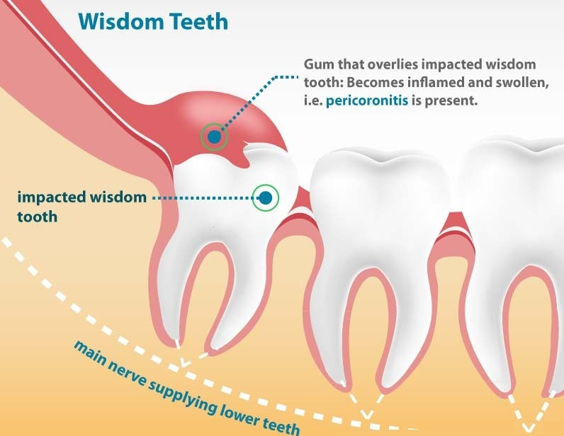 Wisdom teeth usually affect young adults between 15 and 25 years of age